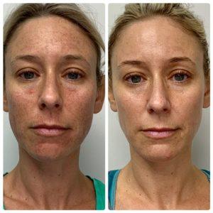 IPL-photofacial-treatment